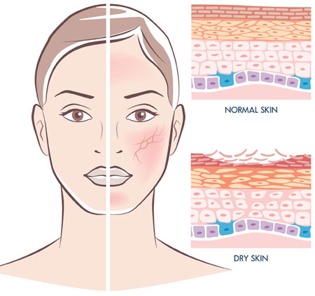 sci-skin-dry-illustration.jpg